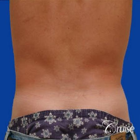 best male ab sculpting liposuction abdomen flanks -  After Image 3
