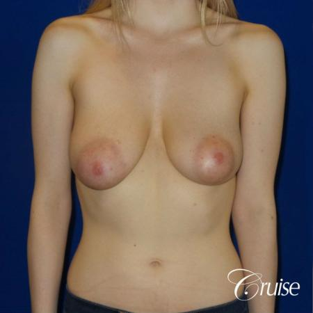 Breast Lift before and after Orange County - Before Image 1