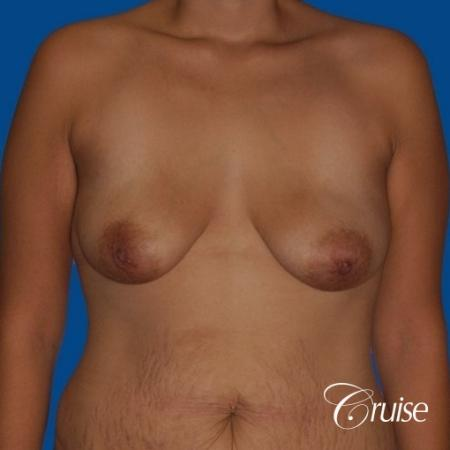best breast lift anchor by top plastic surgeon in Newport Beach - Before Image 1