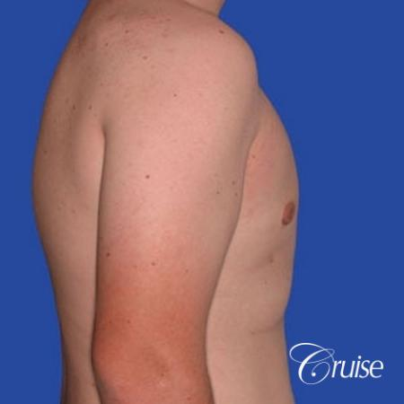 mild gynecomastia with puffy nipple from puberty -  After Image 2