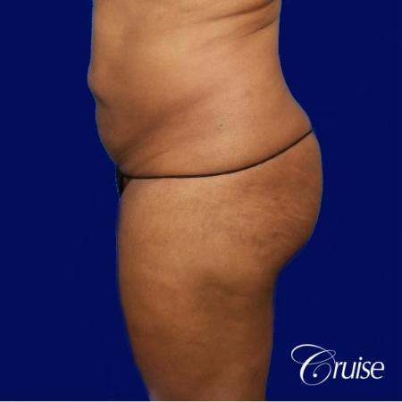 Liposuction Flanks - Before Image 2
