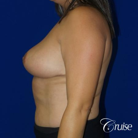 Breast reduction surgery with no implants added -  After Image 3