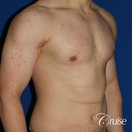 mild-gynecomastia-revision -  After Image 3
