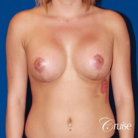 best breast lift scars on young girl with saline implants -  After Image 1