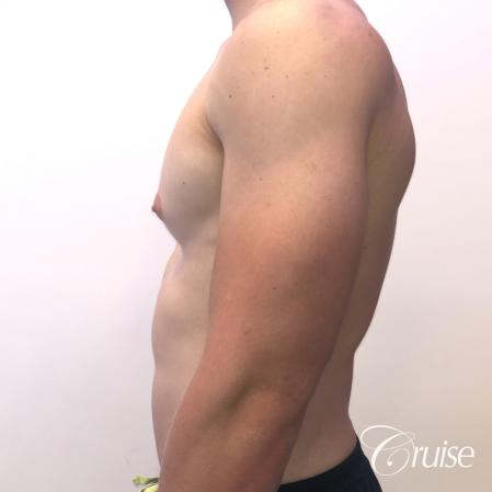 gynecomastia with puffy nipples - Before Image 2