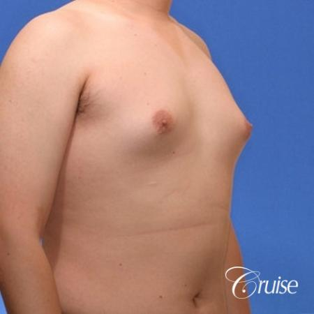 young male with mild gynecomastia surgery for puffy nipple - Before Image 4