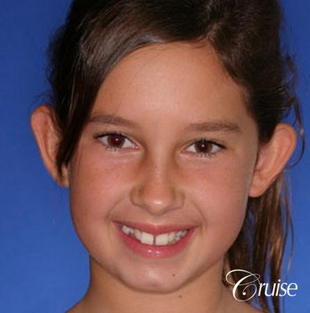 best otoplasty pictures on adolescent child teen - Before Image