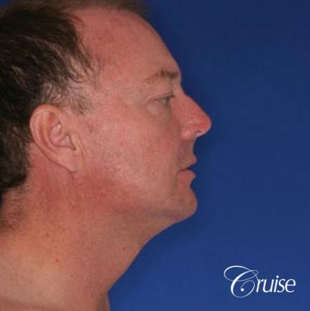 best male chin implant with large square jaw -  After Image 2