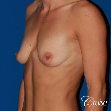 best pictures of young patients with silicone breast lift anchor - Before and After Image 3