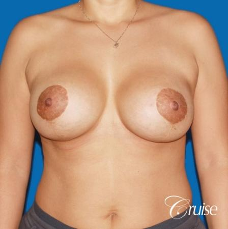 best before and after photos of young breast lift anchor scars -  After Image 1
