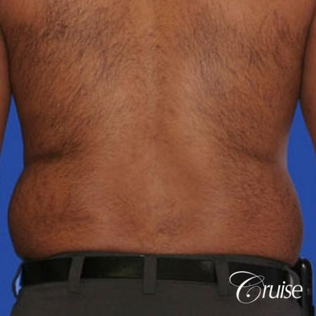 best liposuction abdomen and flanks on a male patient - Before Image 2