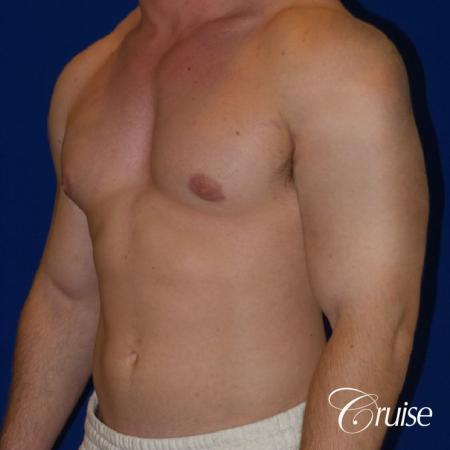 Pictures of young bodybuilder with gynecomastia -  After Image 2