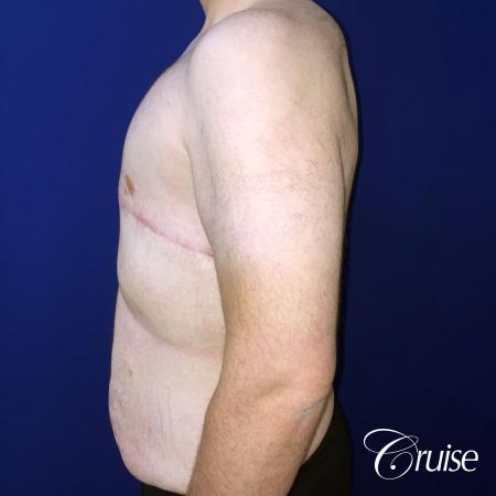 severe gynecomastia -  After Image 4