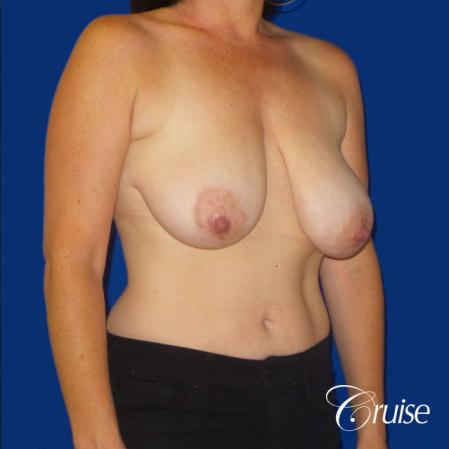 Breast Reduction No Implants - Before and After Image 4
