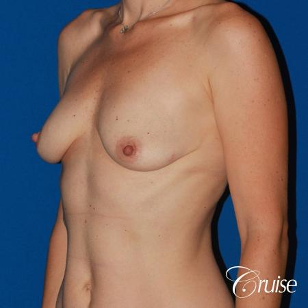 young woman with silicone breast lift anchor - Before Image 3