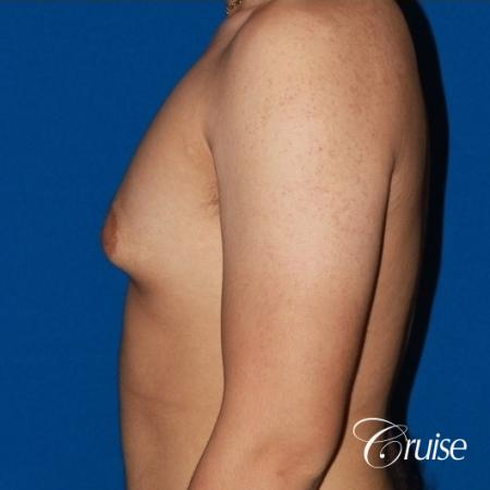 puffy nipple male breast on young adult - Before Image 2
