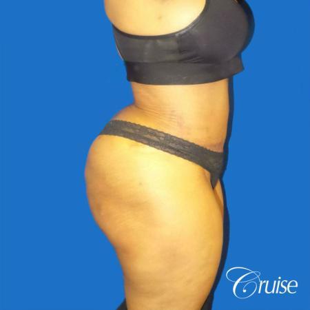 Best Tummy Tuck surgeons Newport Beach -  After Image 4