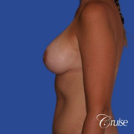 breast lift anchor on young woman -  After Image 2