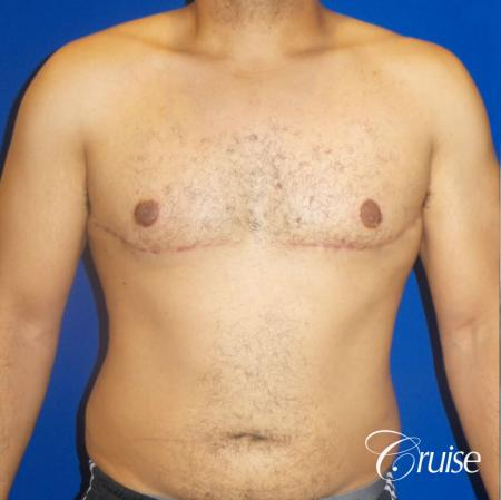 Best gynecomastia specialist in united states -  After Image 1