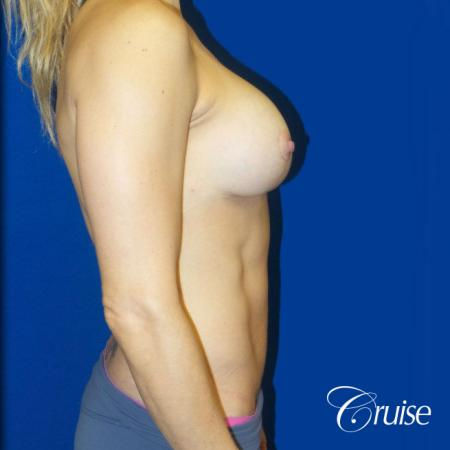 Breast Lift Anchor W/ Silicone Implants On Young Woman - After Image 2