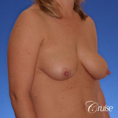 best breast lift anchor with silicone implants on 40 year old woman - Before Image 3