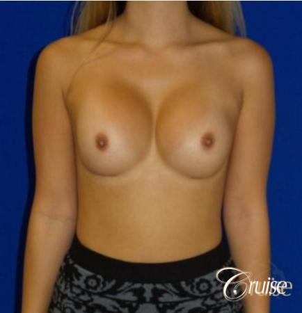 Breast Revision - After Image 1