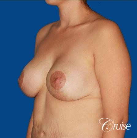 best breast lift anchor by top plastic surgeon in Newport Beach -  After Image 3