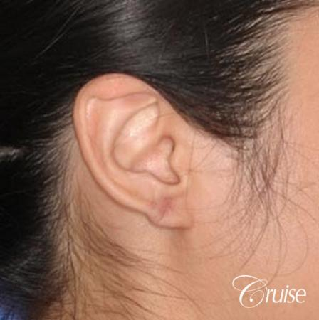 best keloid removal and treatment on ear pictures - After Image
