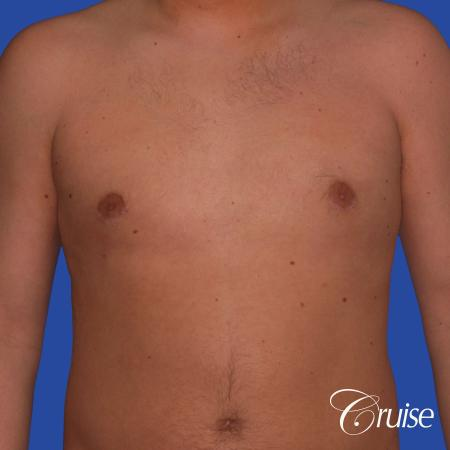 best puffy nipple gynecomastia results with plastic surgeon, Joseph Cruise, M.D. -  After Image 1