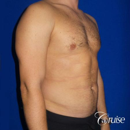 Moderate Gynecomastia -Puffy Nipple -Areola Incision - After Image 4