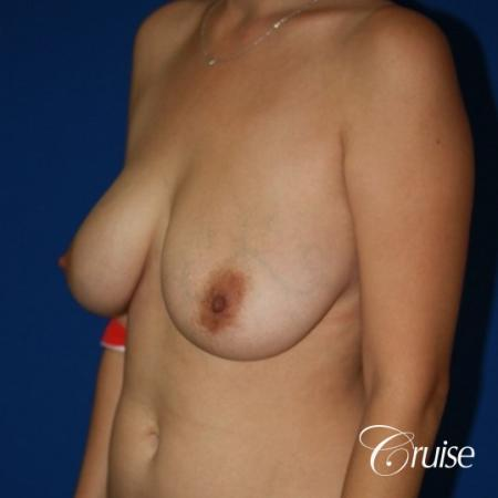 best results for breast lift anchor with saline implanta - Before Image 3