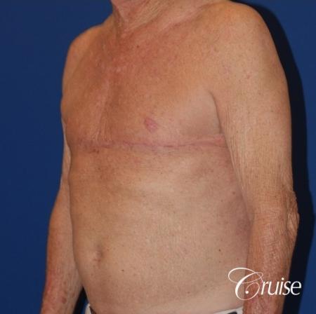 free nipple graft gynecomastia on old man - After Image 2