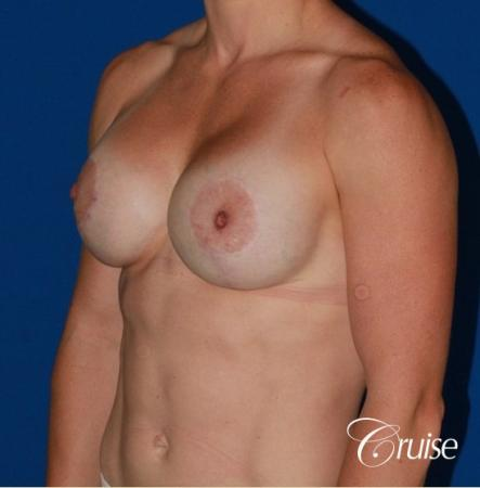 best breast lift anchor on athletic body type -  After Image 2
