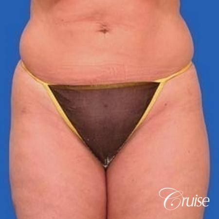 best liposuction abdomen, flanks and thighs -  After Image 1