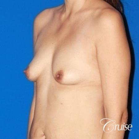 best breast lift anchor with high profile silicone 425cc - Before Image 3