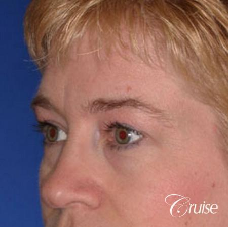 best specialist for upper eyelid surgery - Before Image 3