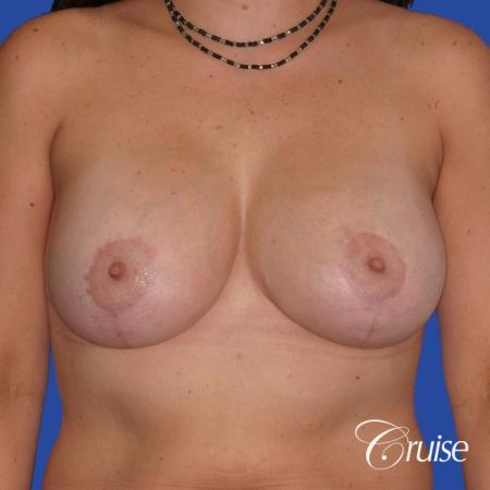 best results for breast lift surgeon in Newport Beach -  After Image 1
