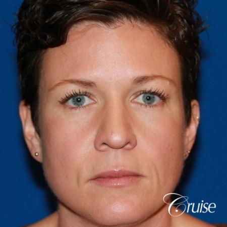 Fat Transfer - Face: Patient 4 - Before Image