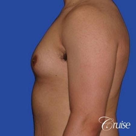 minor gyne young adult with best scars - Before Image 2