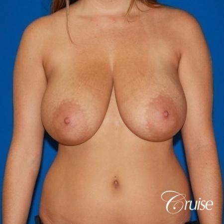 best breast lift and reduction with small saline implants - Before Image 1