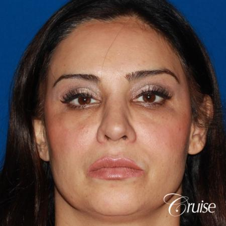Fat Transfer - Face: Patient 17 - After Image