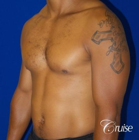 gynecomastia caused by testosterone -  After Image 3
