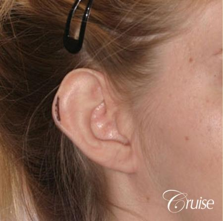 best otoplasty photos by top plastic surgeon - Before Image 2