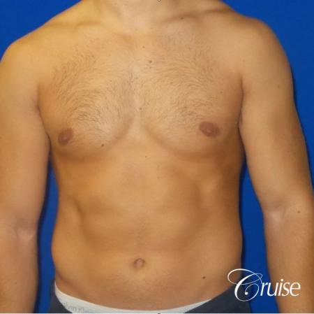 Mild Gynecomastia -Areola Incision - After Image 1