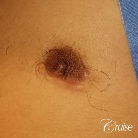 Medical Tattooing: Patient 4 - Before