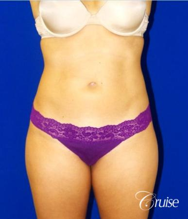 Liposuction -  Flanks - After