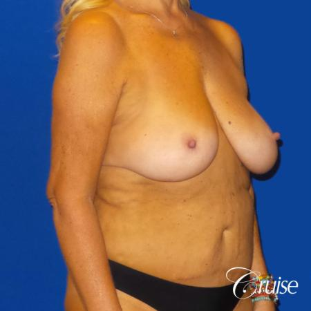 Breast Lift Anchor W/ Silicone Implants On Mature Woman - Before Image 2