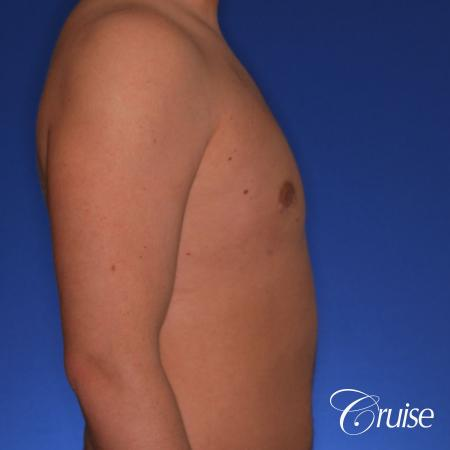 best puffy nipple gynecomastia results with plastic surgeon, Joseph Cruise, M.D. -  After Image 3