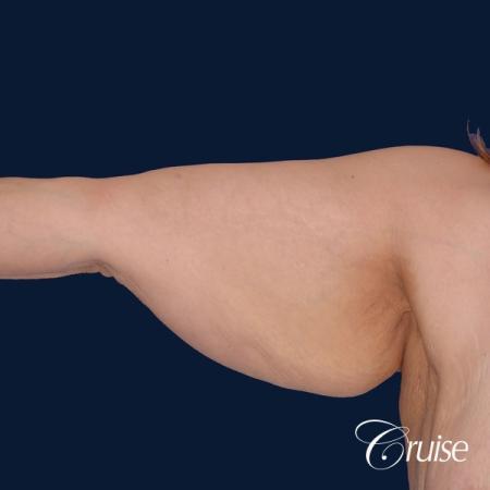 best arm lift newport beach - Before Image 2