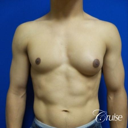 gynecomastia photos of an adult with overdeveloped breast - Before Image 1